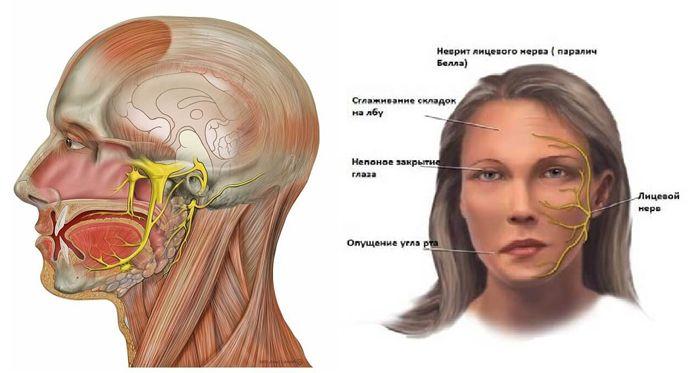 неврит лицевого нерва-2